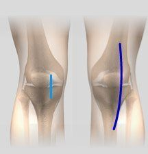 Minimally Invasive Partial Knee Arthroplasty